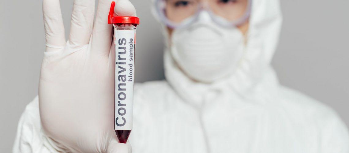 Imagem Coronavírus_site